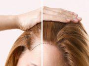 Mẹo giúp tóc mỏng trở nên dày chỉ trong tức khắc.
