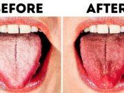 Đánh răng đều đặn mỗi ngày nhưng vẫn bị hôi miệng, nguyên nhân nằm ở một bộ phận ít ai ngờ.