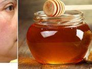 Tốn cả chục triệu đi spa trị nám không sạch, 3 cách trị nám bằng mật ong sẽ giúp bạn!