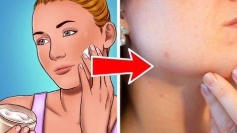 8 sai lầm khi chăm sóc da khiến lỗ chân lông ngày càng to.